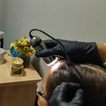 thumb-servico-tratamento-capilar-avaliacao-capilar-001
