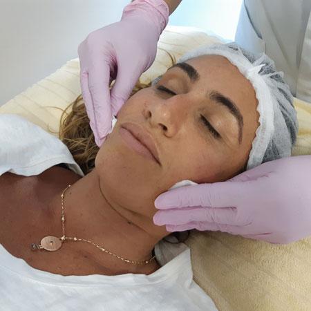 thumb-servico-tratamento-facial-dermopurificacao-facial-001