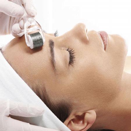 thumb-servico-tratamento-facial-microagulhamento-avancado-facial-metodo-erick-davila-001