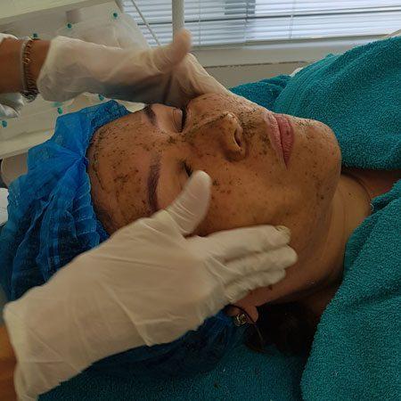 thumb-servico-tratamento-facial-peeling-rose-de-mer-003